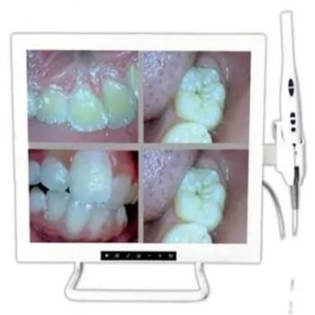 Dental intra-oral camera