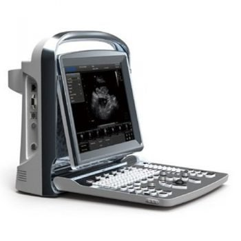 Portable Ultrasound Chison ECO1