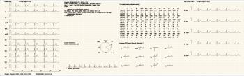 Trismed 12 Channel ECG Cardipia 800H, Korea